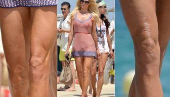 Victoria Silvstedt ha la cellulite: la mette in mostra su gambe e ginocchia