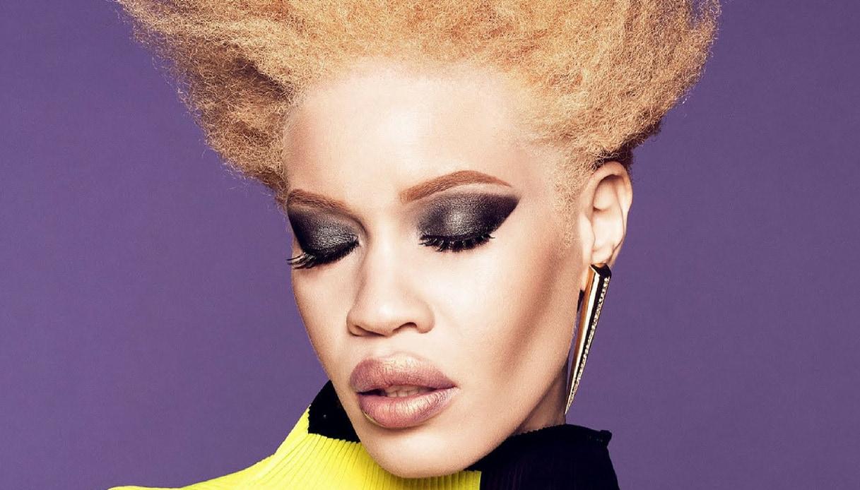 Chi è Diandra Forrest, la modella albina