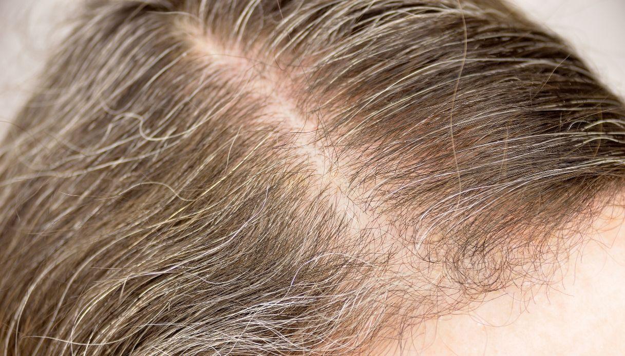Eccezionale Tinta capelli fai da te: applicazione, errori da evitare, colori YH55