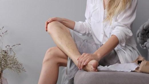 Estate, cosa fare se le vene delle gambe soffrono