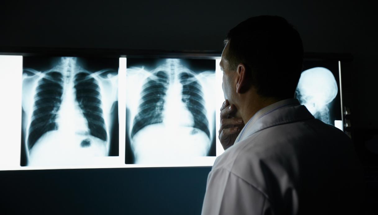 Radiografia al torace