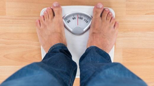 Obesità, quando serve l'operazione