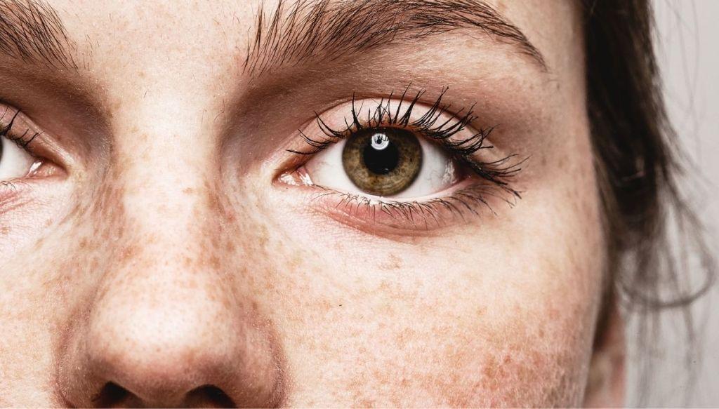 primo piano occhio verde donna lentiggini