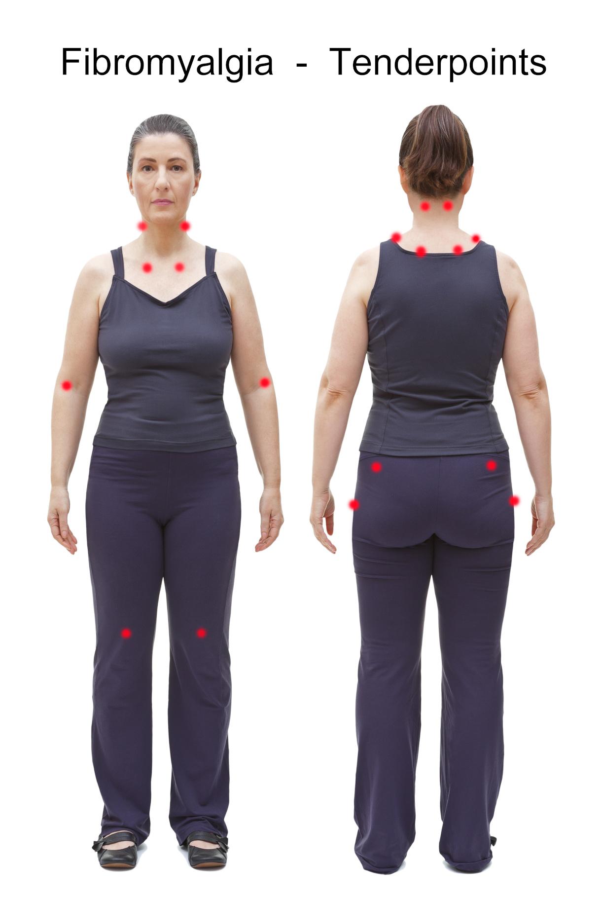 tender points fibromialgia