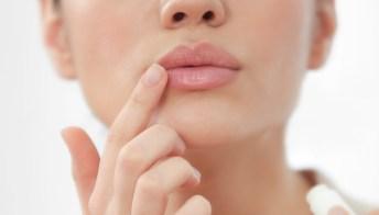 Herpes labialis: cause, trattamenti e il ruolo dell'alimentazione