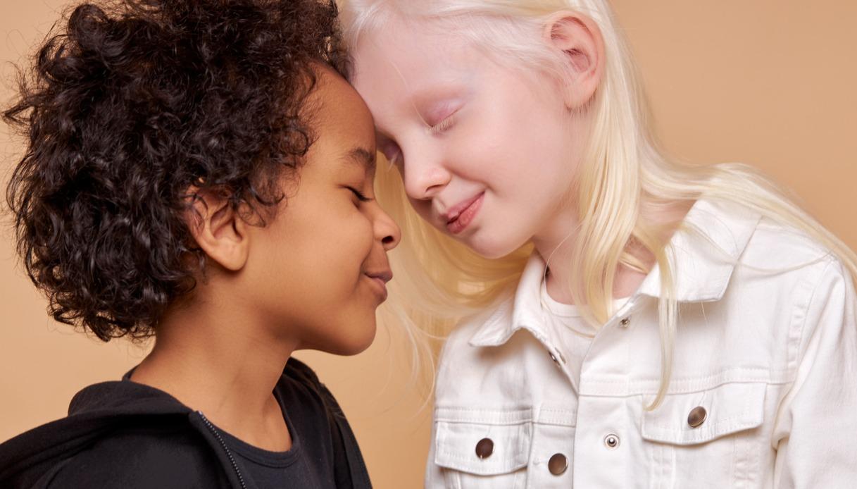 Giornata Internazionale dell'Albinismo