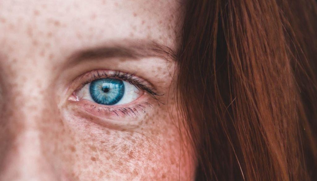 occhio azzurro capelli rossi lentiggini