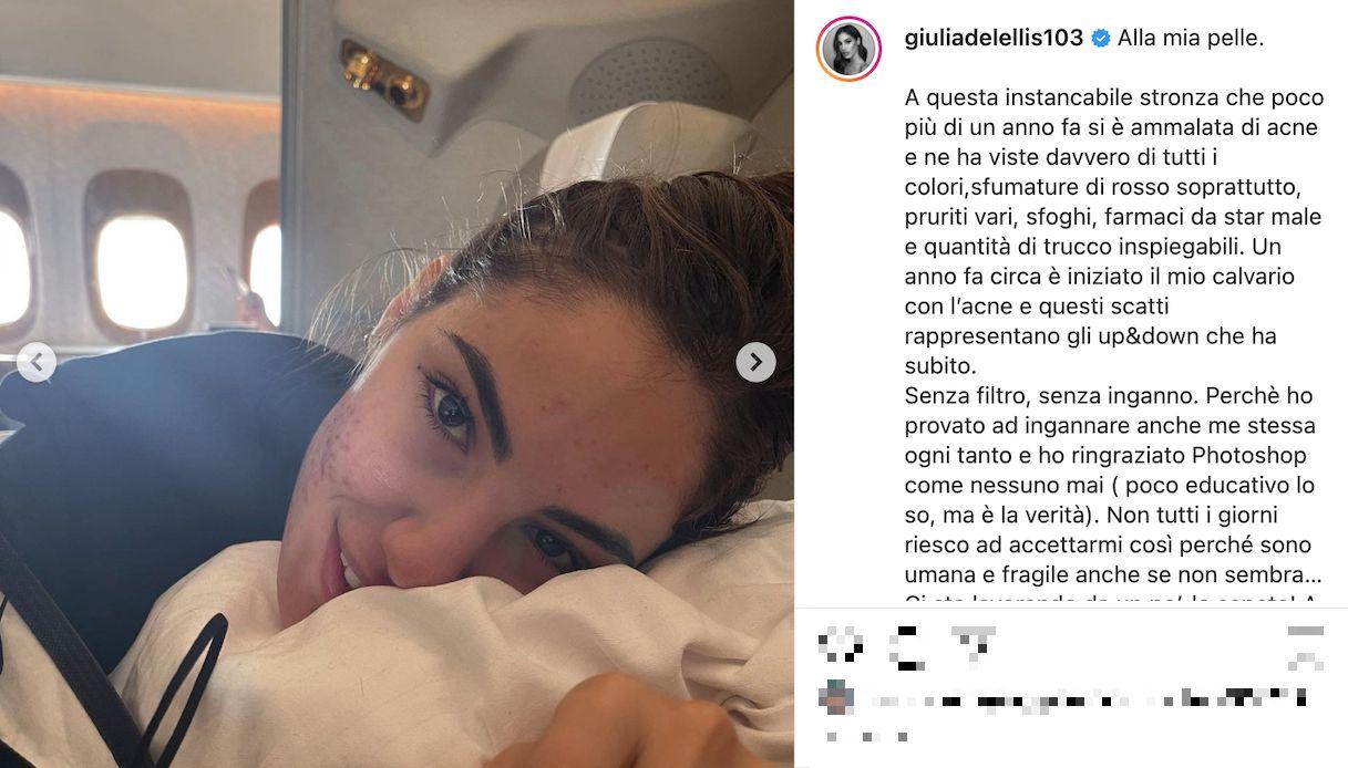 Giulia De Lellis, la lotta con l'acne