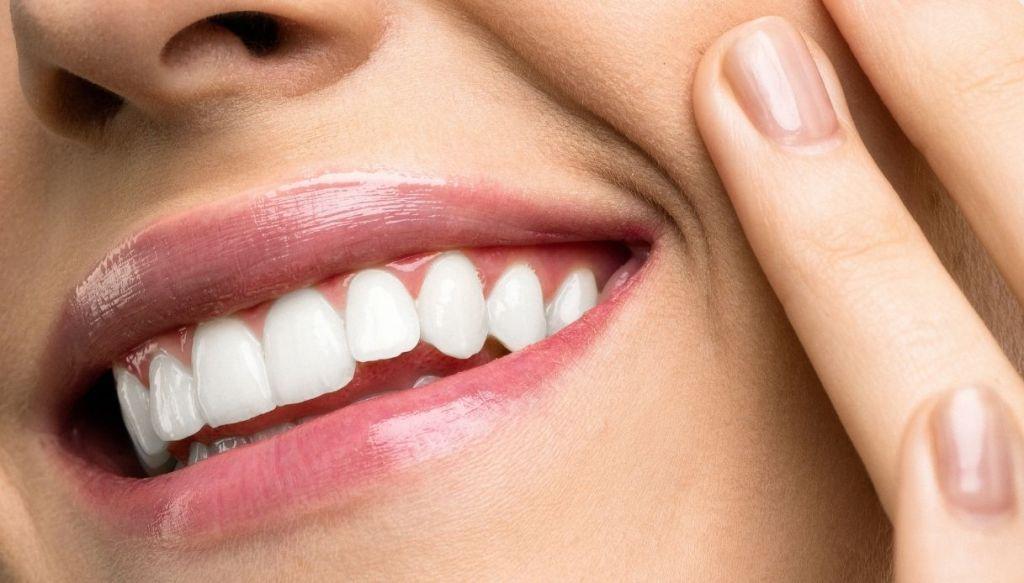 labbra naturali gloss sorriso denti bianchi